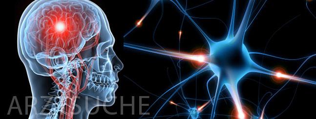 Entzündung Gehirn Autoimmun